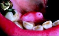 U men ngoại biên nằm ở nướu răng mặt trong xương hàm dưới vùng răng trước phải