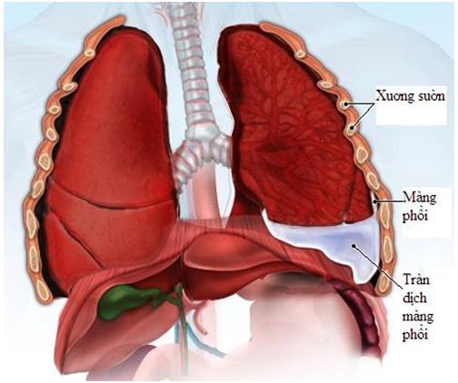 Tràn dịch màn phổi